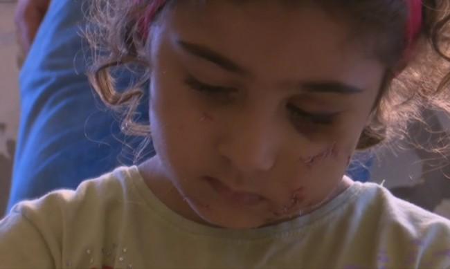 Децата в Бейрут травмирани от ужасяващия взрив
