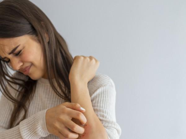 Екземата е кожно състояние, което се обостря по различни причини