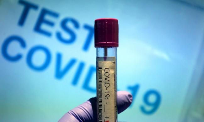154 нови случая на коронавирус, 10 души починаха за 24 часа