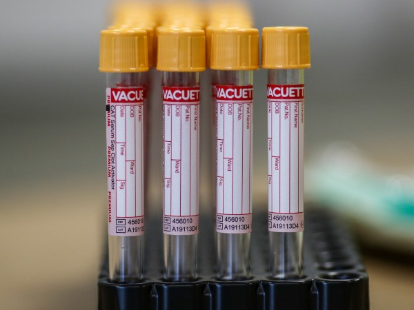 Якоруда е новото огнище на коронавирус в област Благоевград. За