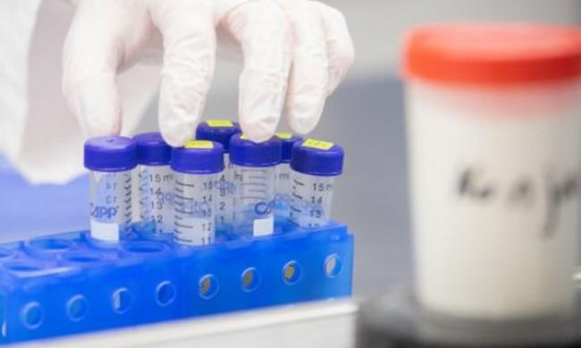 До колко кръвната група влияе върху протичането на коронавируса?