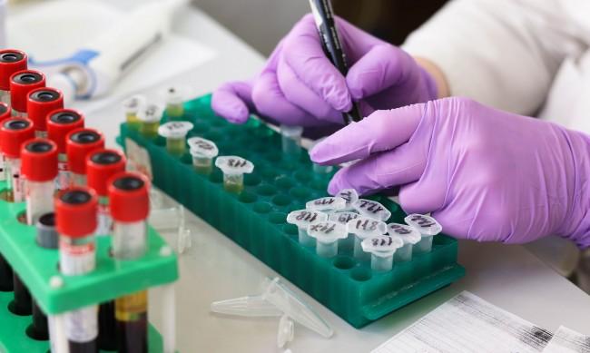 Болницата в Асеновград вече разполага с лаборатория за PCR