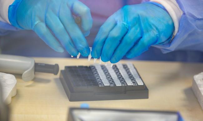 PCR не трябва да се прави веднага след контакт с болен