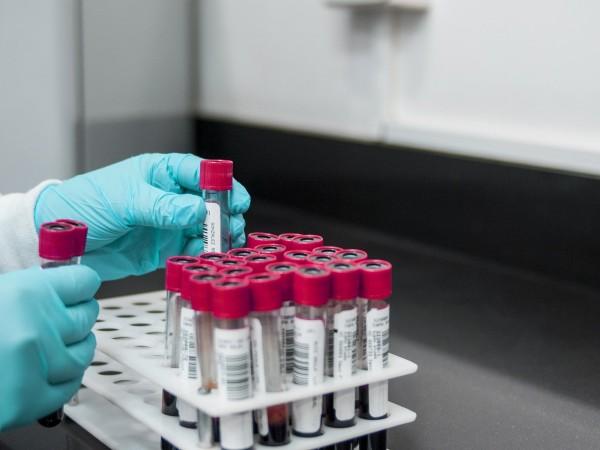 56 са регистрираните нови случаи на COVID-19 в област Стара