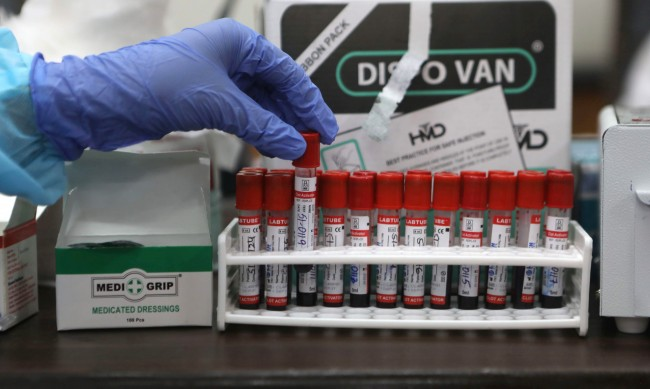Имунитет срещу COVID-19 има, но той намалява доста бързо