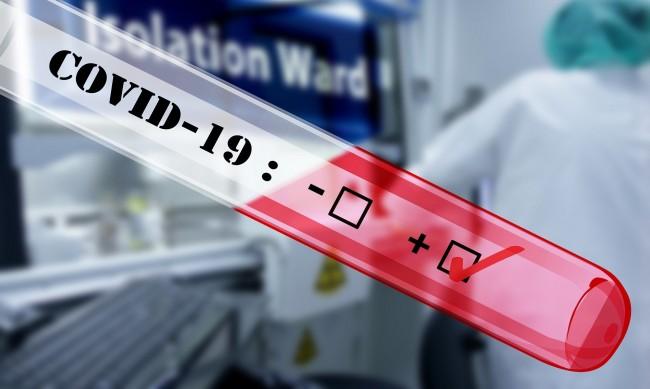 184 души медицински персонал в област Сливен са с COVID-19