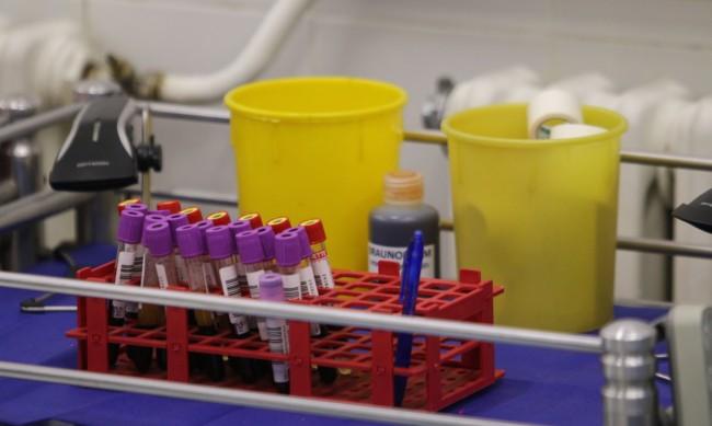 Хората с нулева кръвна група с най-малък риск от COVID?