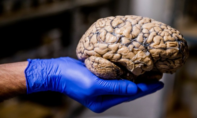 Коронавирусът поразява паметта и концентрацията