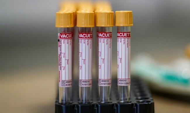 Защо Габрово е на първо място по брой на заразените с COVID-19?