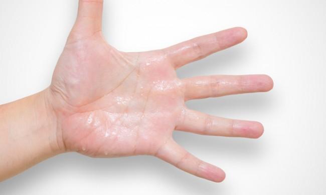 Причините за повишено изпотяване на ръцете