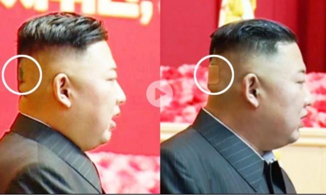 Нова мистерия около здравето на Ким Чен Ун: Появил се с лепенка на главата