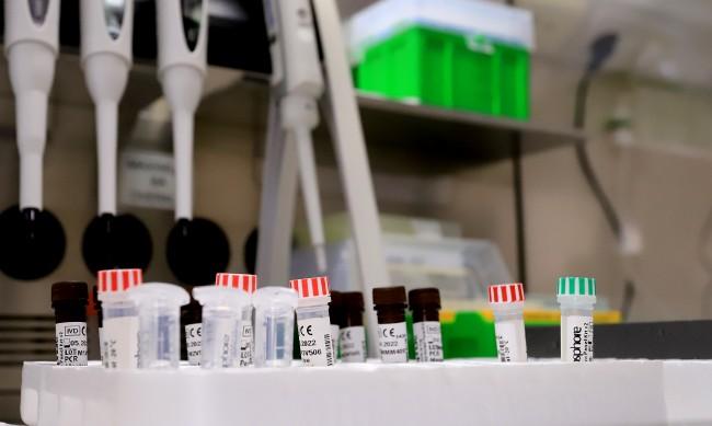 2005 са новите случаи с коронавирус у нас, 121 са починали