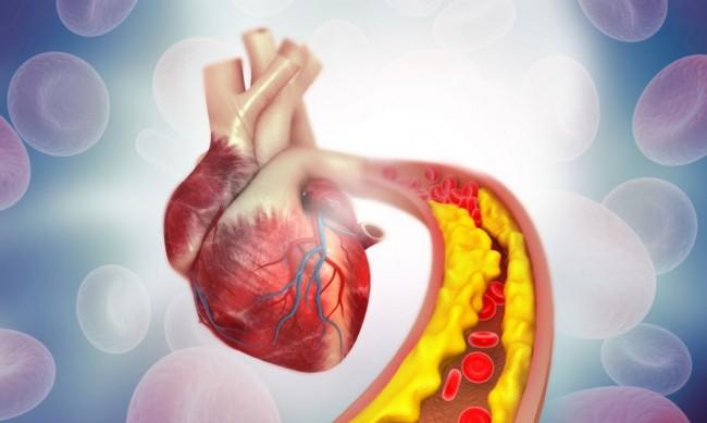 Фамилната хиперхолестеролемия често остава скрита