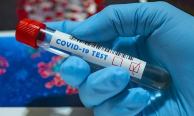 Настинка или коронавирус - как да разберем?